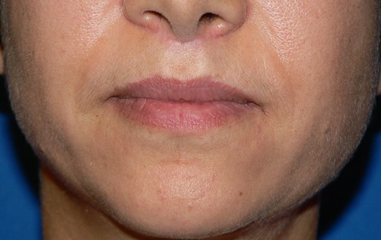 Bullhorn Lip Lift Denver After