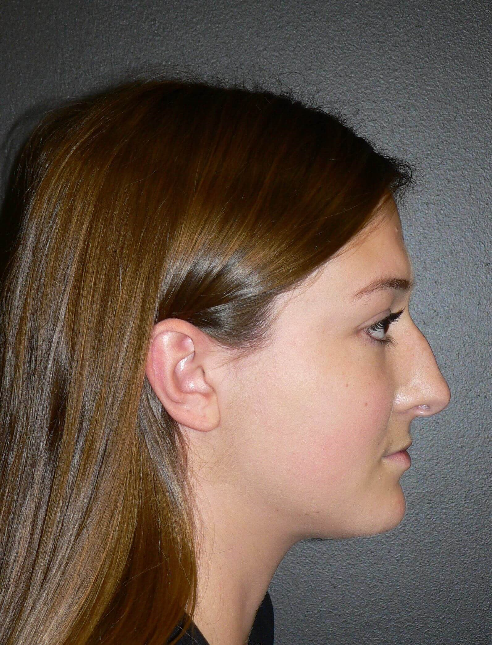 Ultrasonic Rhinoplasty Denver Before