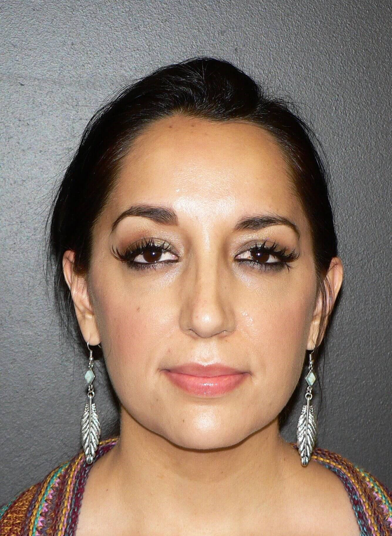 Ultrasonic Rhinoplasty Denver After