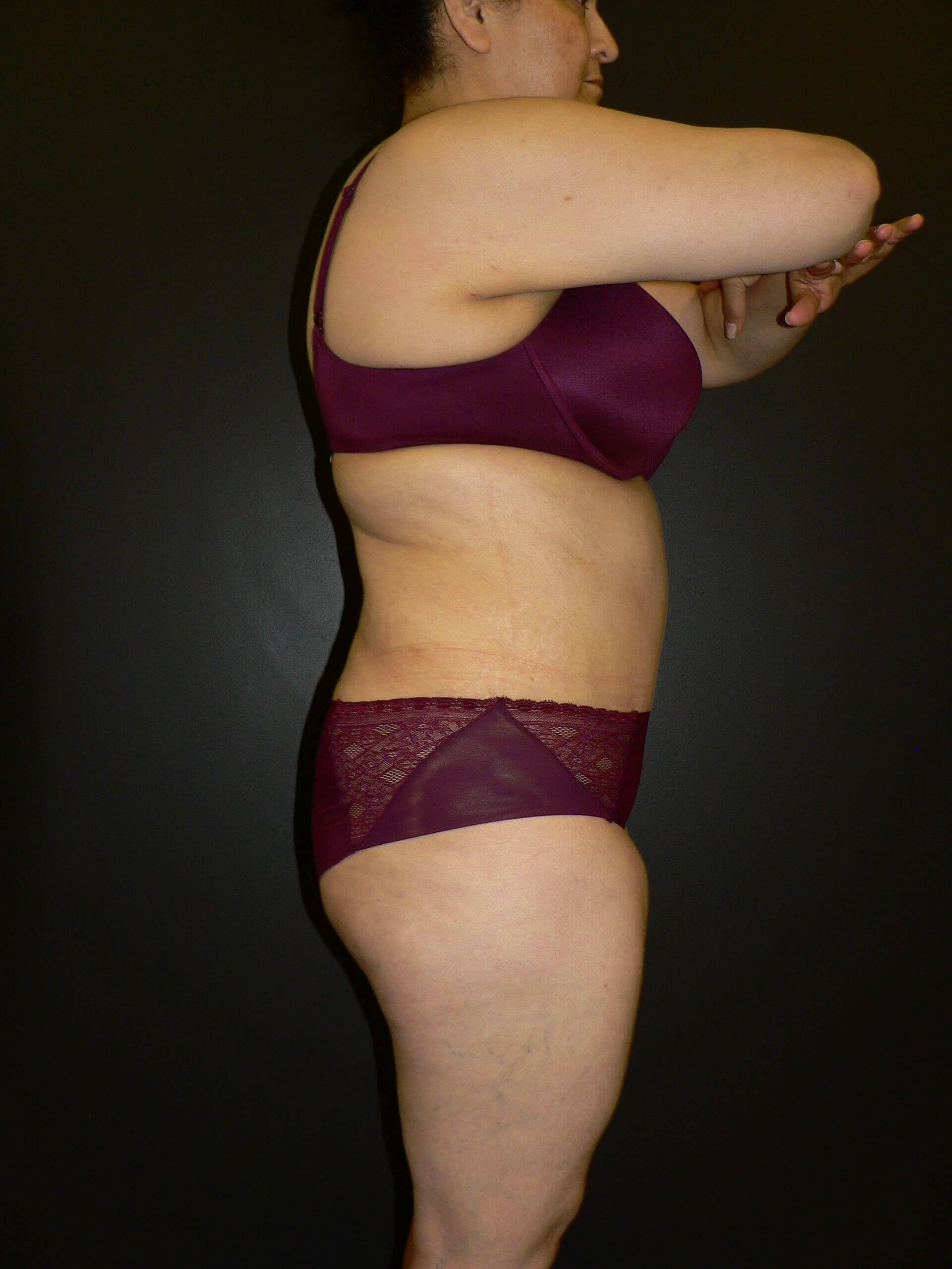 Liposuction and Tummy Tuck After