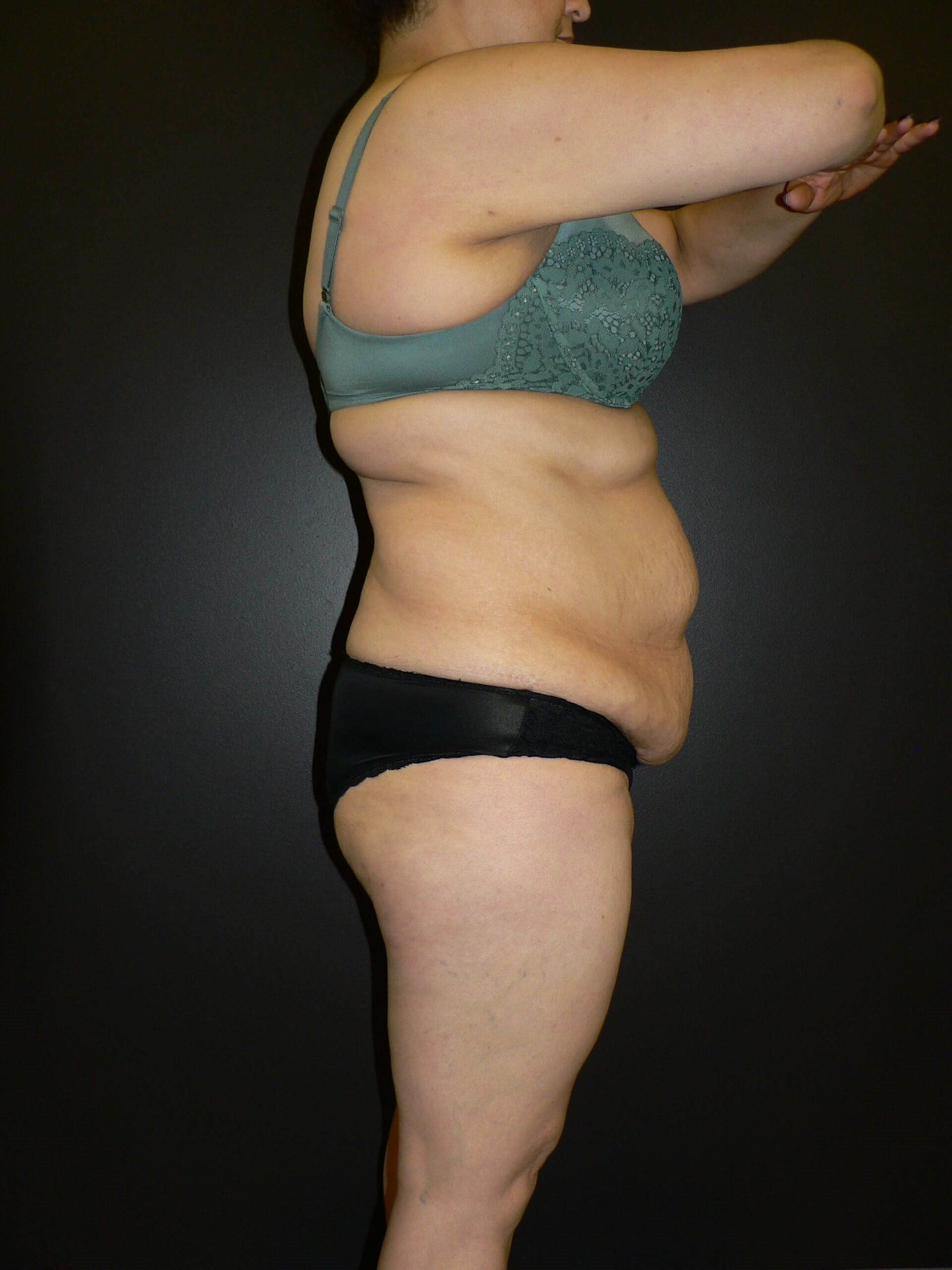Liposuction and Tummy Tuck Before