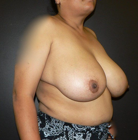 Breast Reduction Denver Before