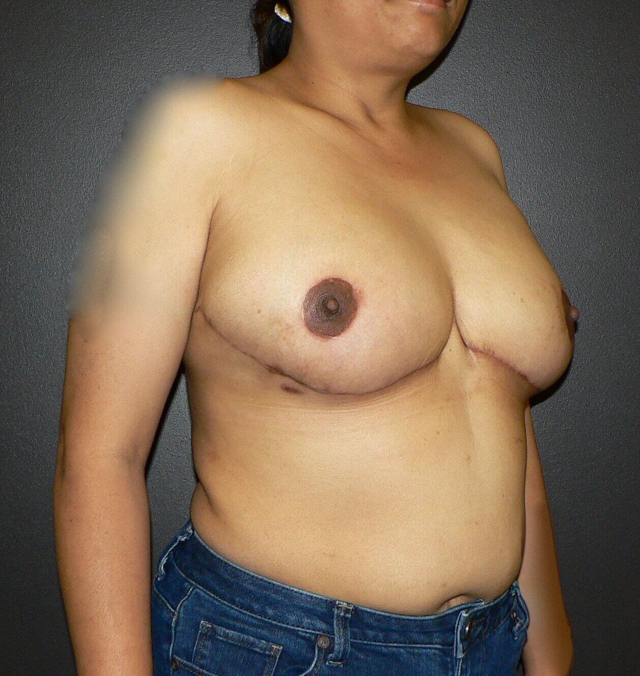Breast Reduction Denver After