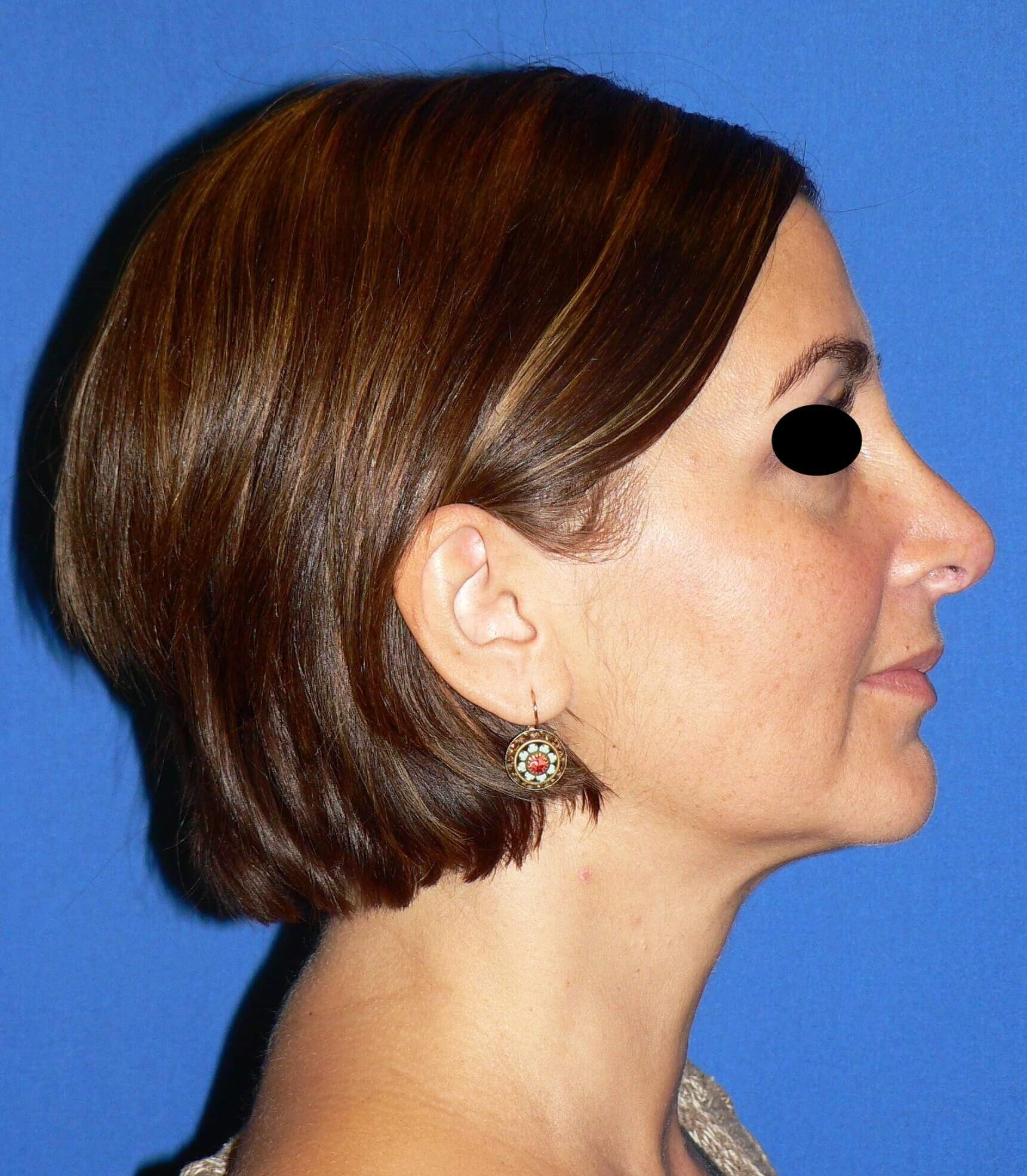 Revision Tip Rhinoplasty Before
