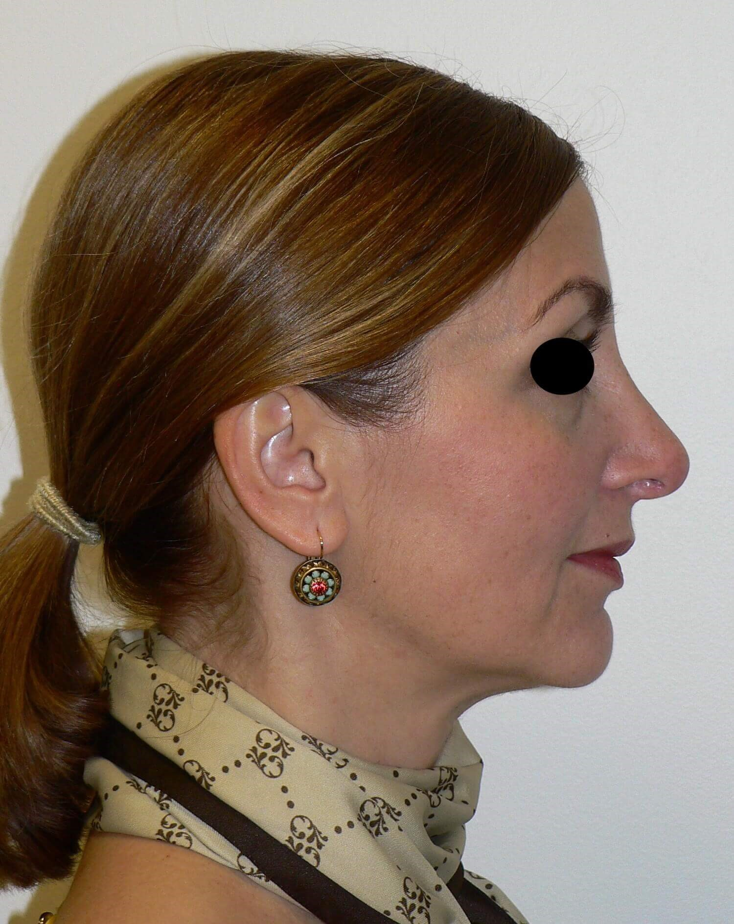 Revision Tip Rhinoplasty After