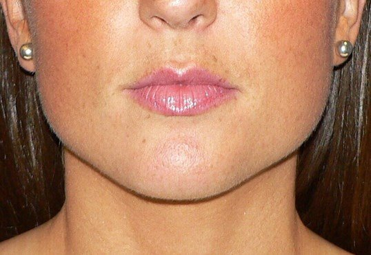 Botox for Jawline Contouring Before