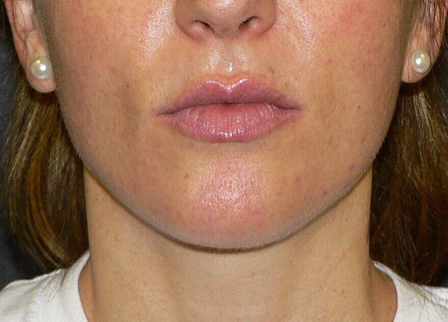 Botox for Jawline Contouring After