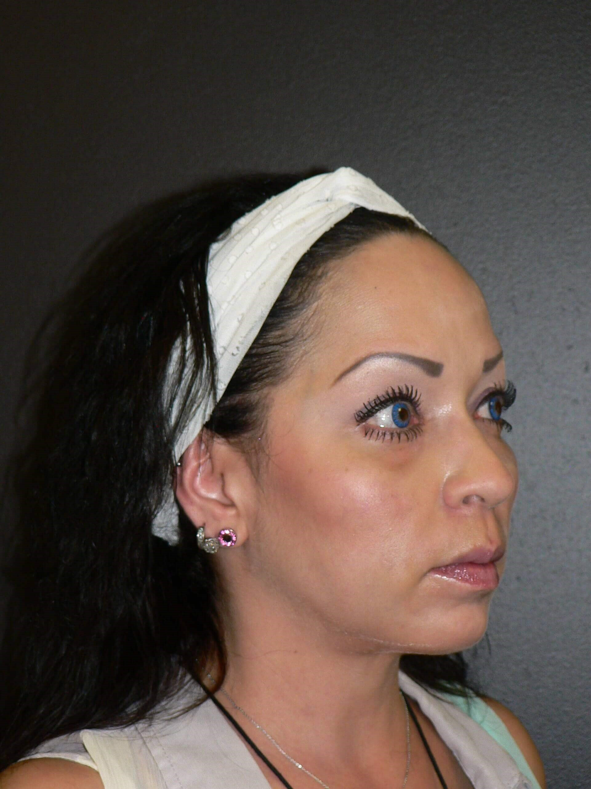 Cheek Augmentation Denver After