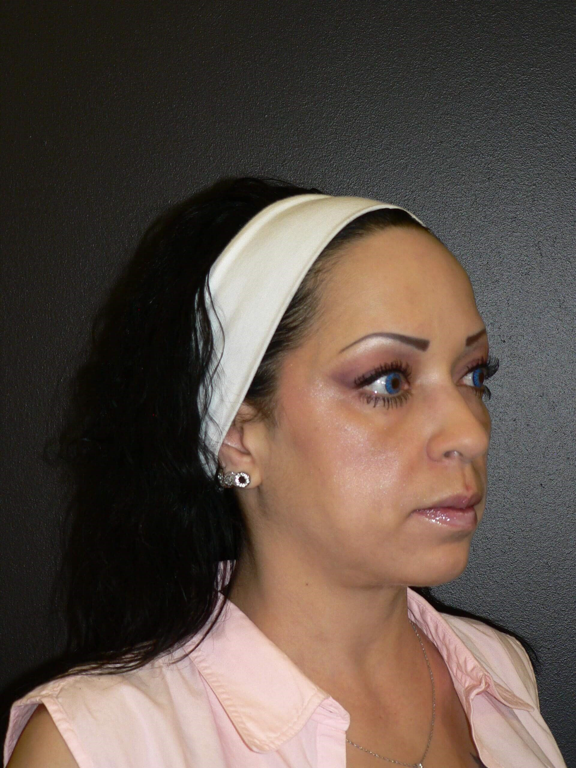 Cheek Augmentation Denver Before