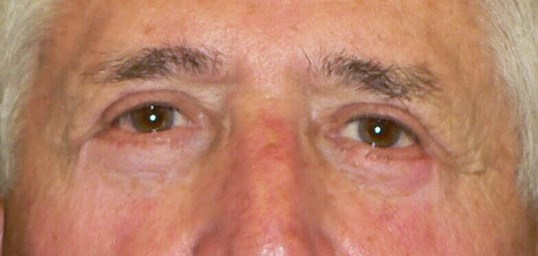 Upper and Lower Eyelid Lift After