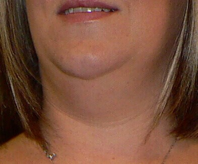Neck Liposuction Denver Before