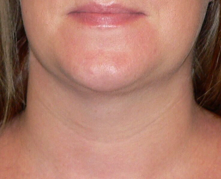 Neck Liposuction Denver After