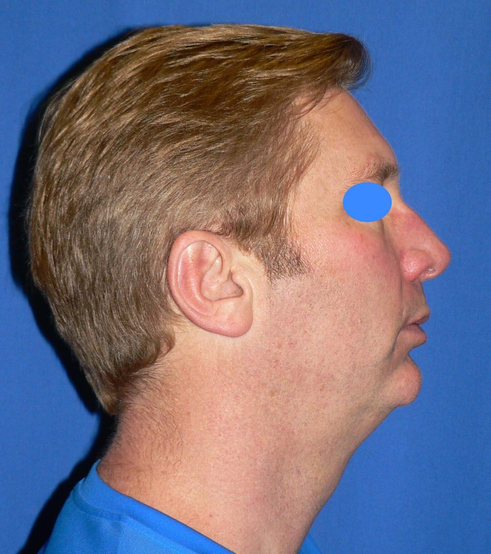 Masculine Jawline Surgery Before