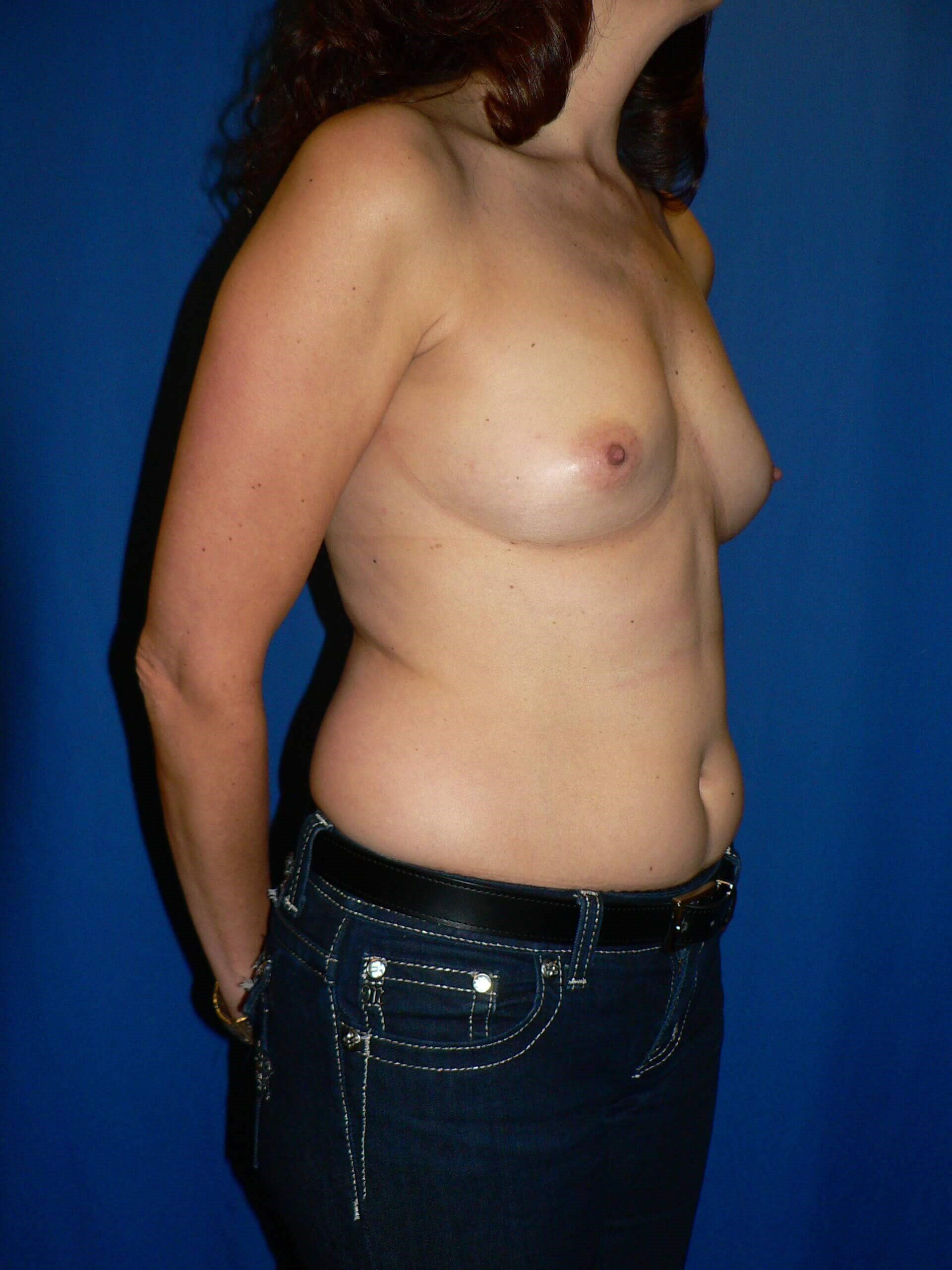 Breast Augmentation Denver Before
