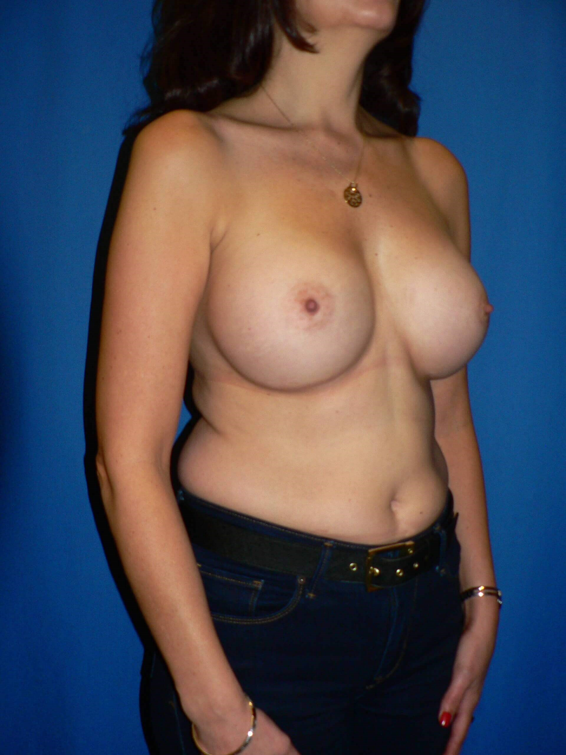 Breast Augmentation Denver After