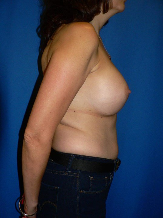 Silicone Breast Implants After