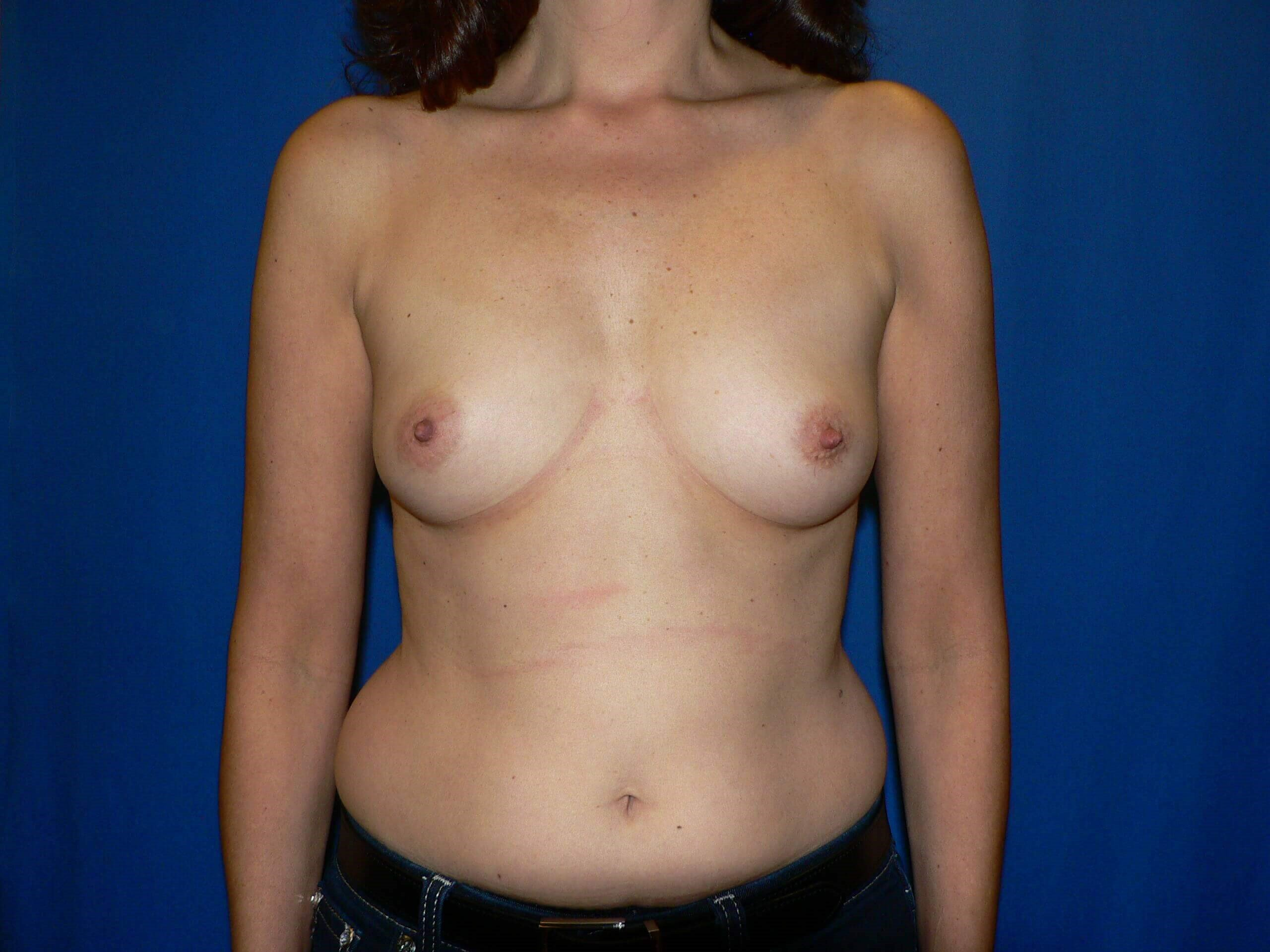 Breast Implants Denver Before