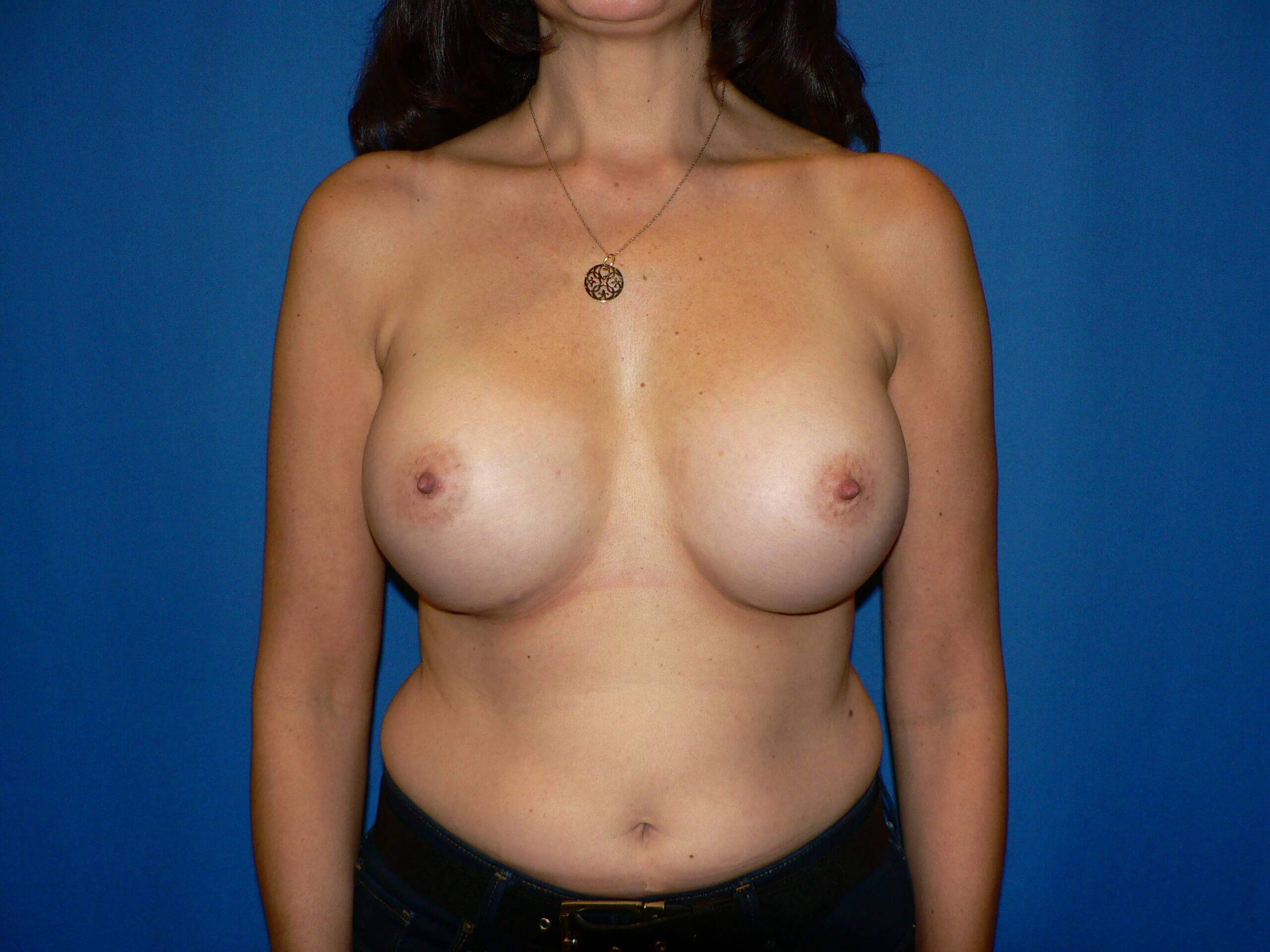 Breast Implants Denver After
