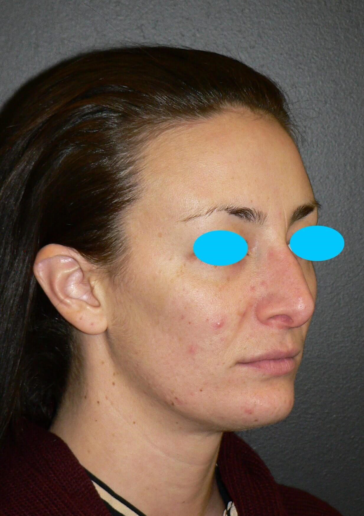 Revision Rhinoplasty Denver Before