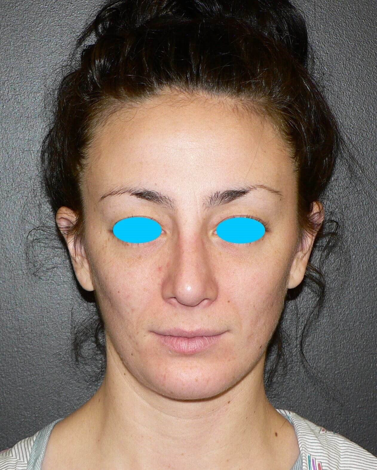Revision Rhinoplasty Denver After