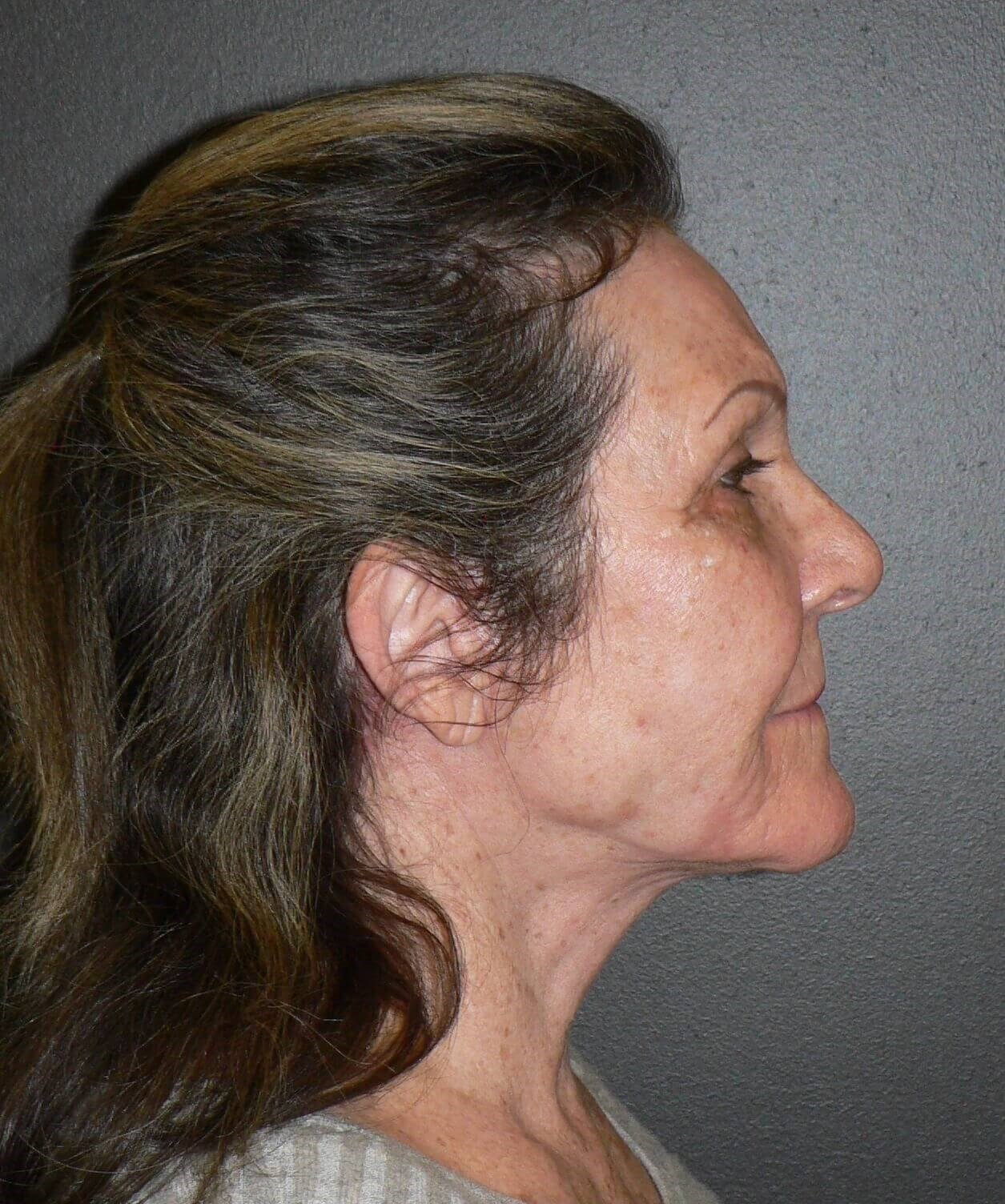 Necklift and Microliposuction After