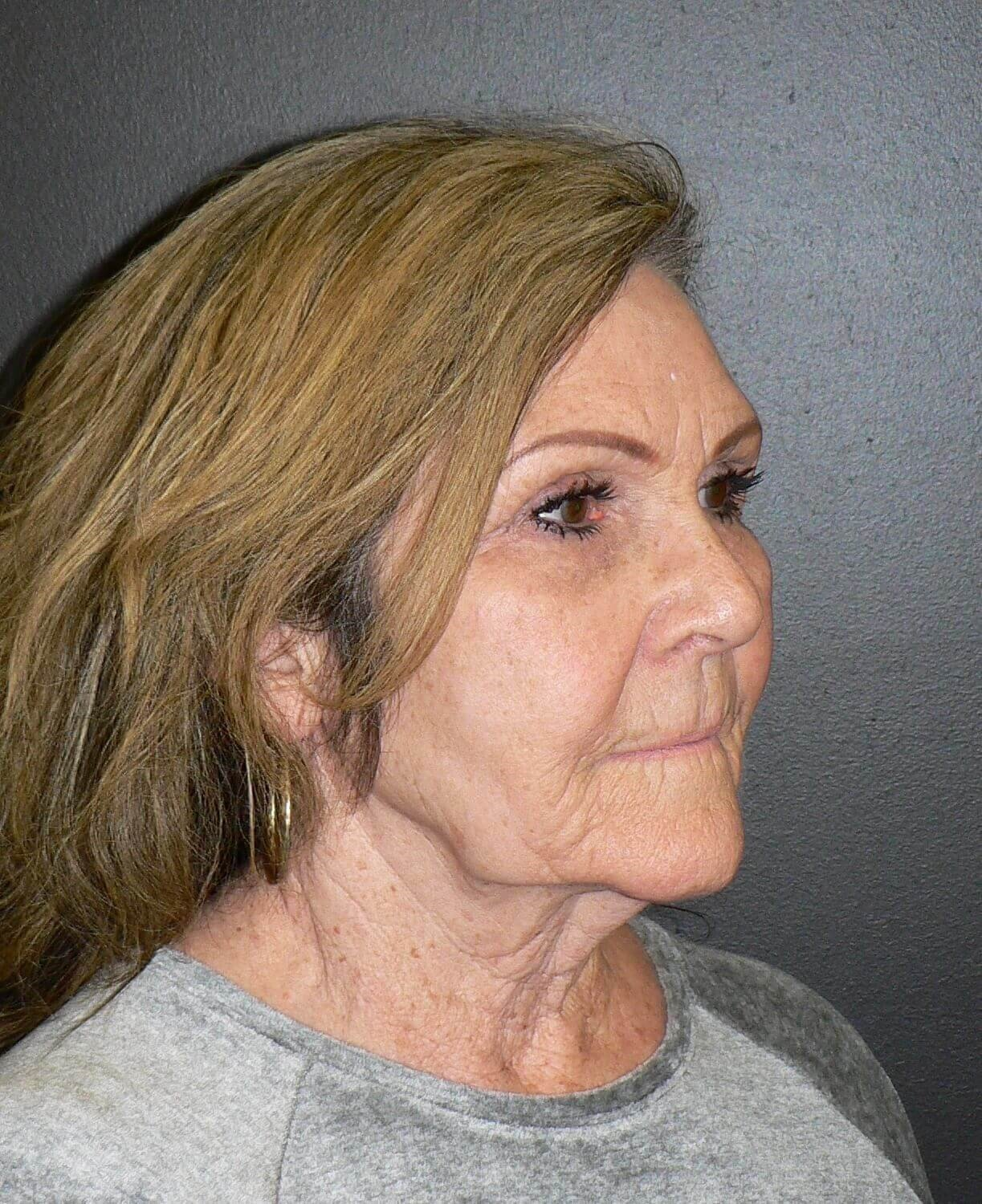 Necklift and Perioral Fat Before