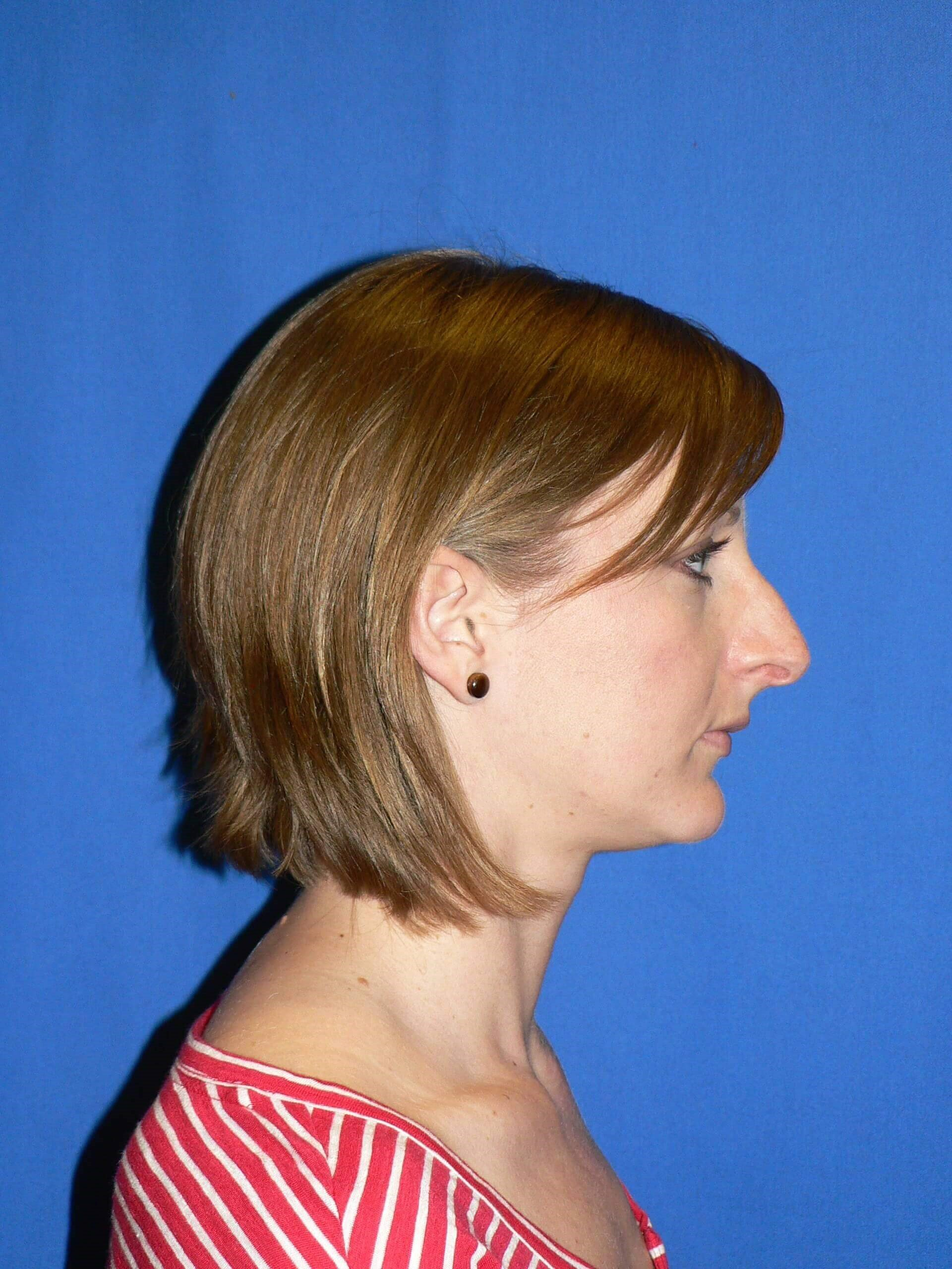 Rhinoplasty Denver Before