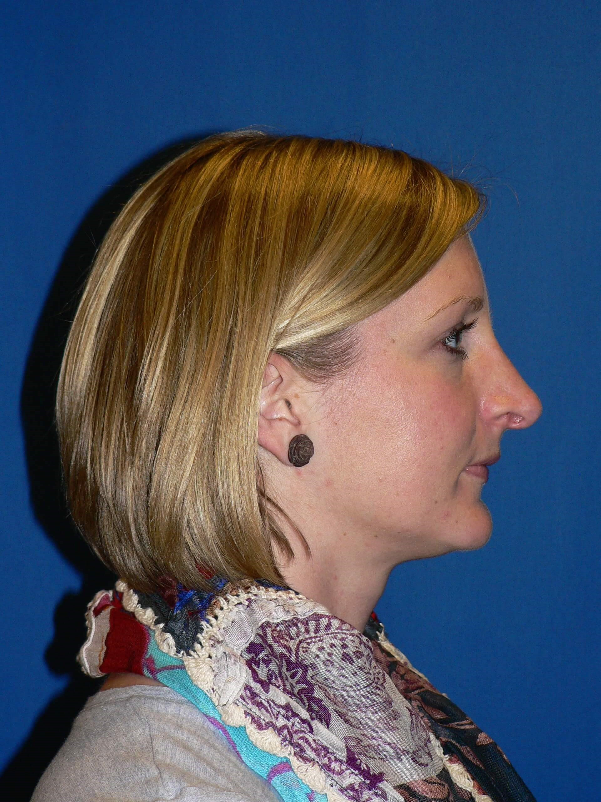 Rhinoplasty Denver After