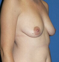 Breast augmentation/ mastopexy Before