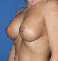 Breast augmentation/ mastopexy After