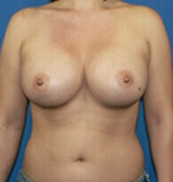 Breast augmentation Denver, CO After
