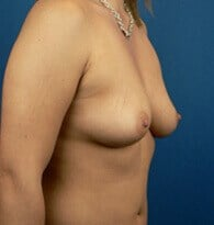 Breast augmentation Denver, CO Before