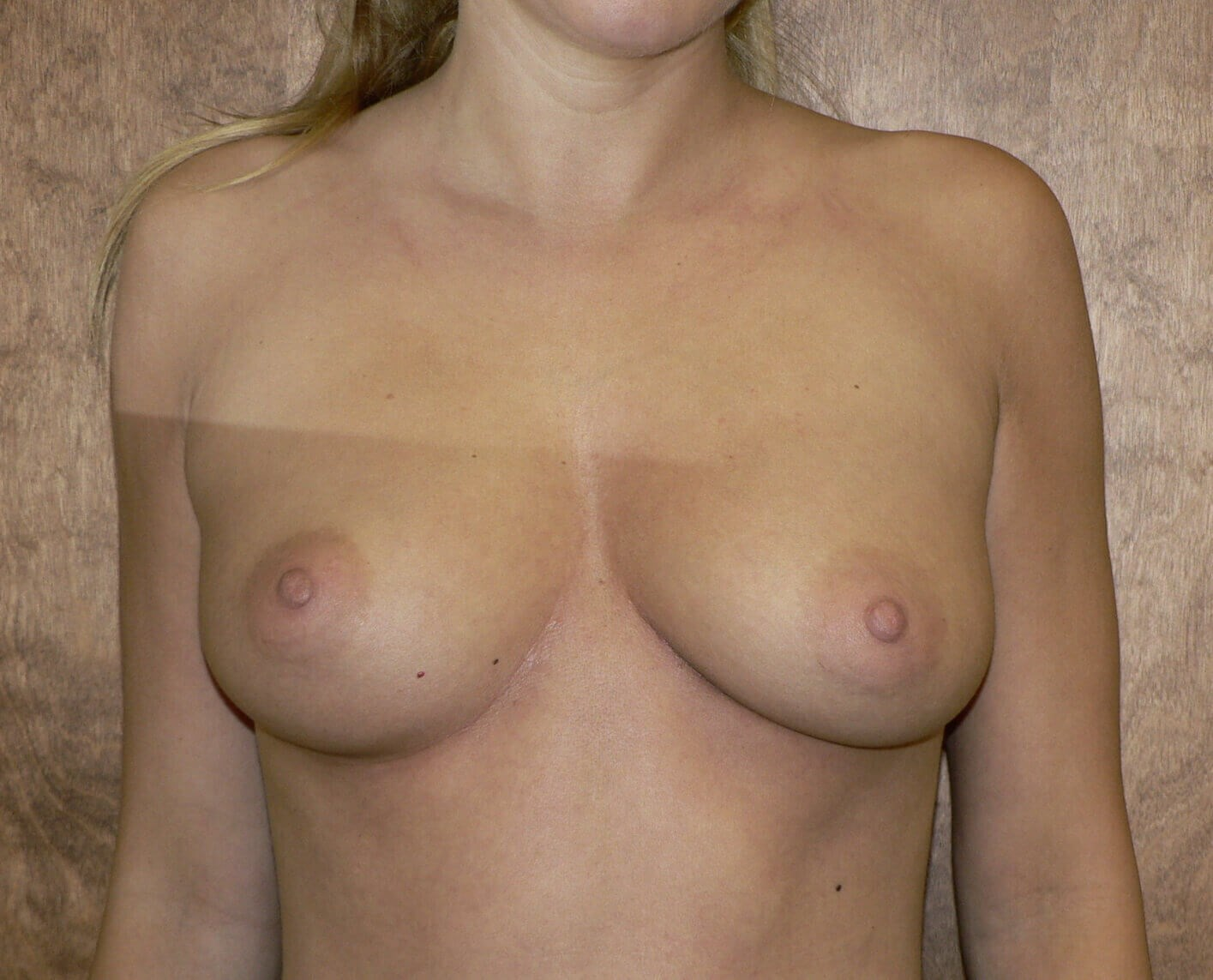Saline breast augmentation Before