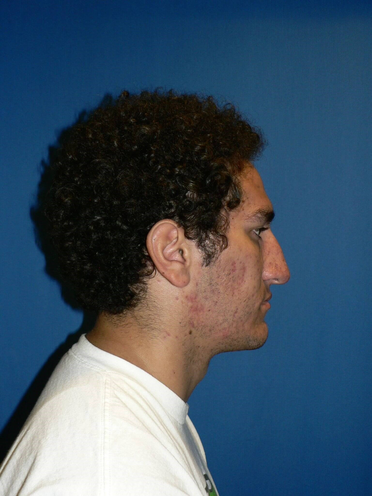 Ethnic Male Rhinoplasty Denver Before