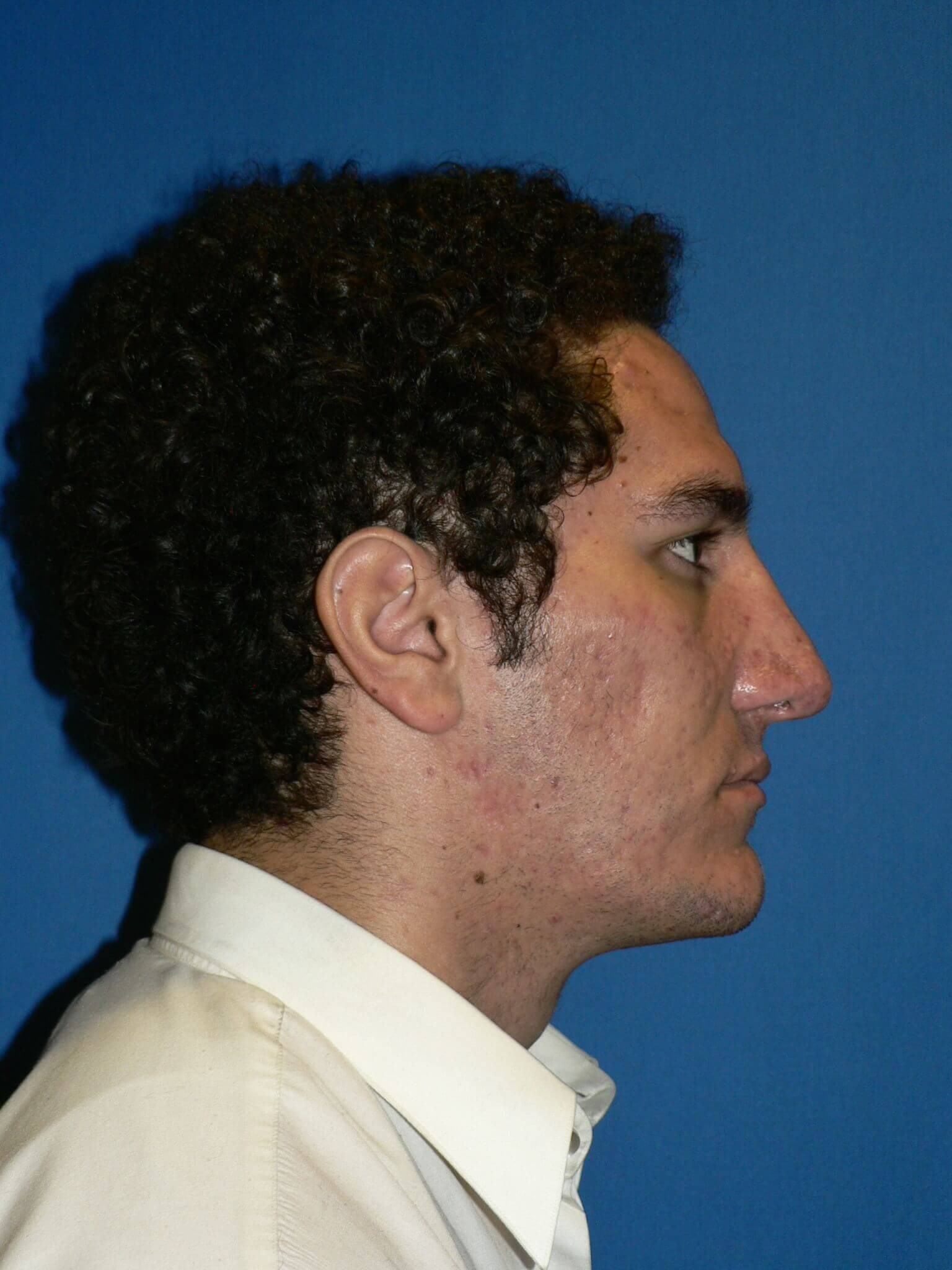 Ethnic Male Rhinoplasty Denver After