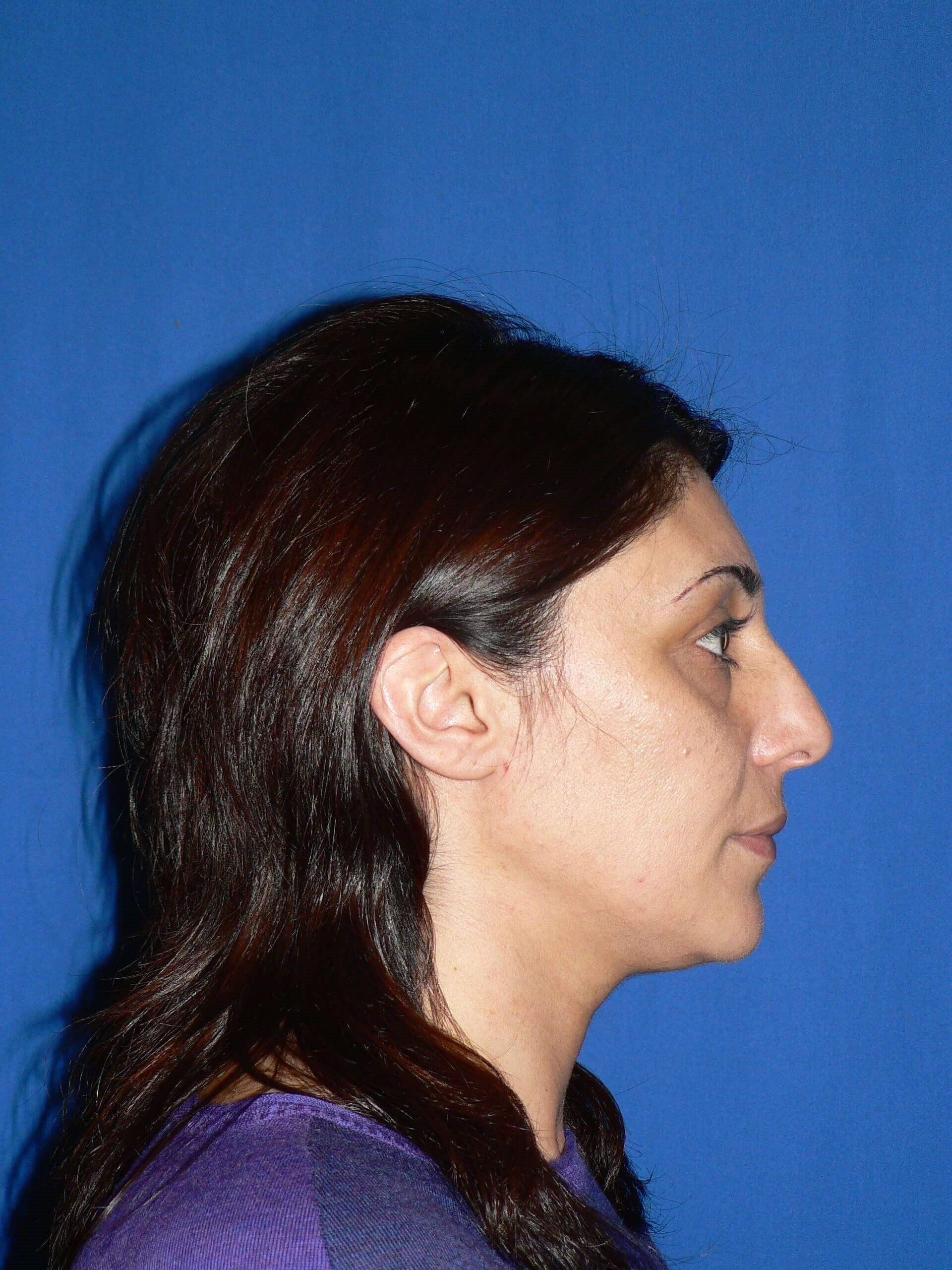 Rhinoplasty Denver, Colorado Before