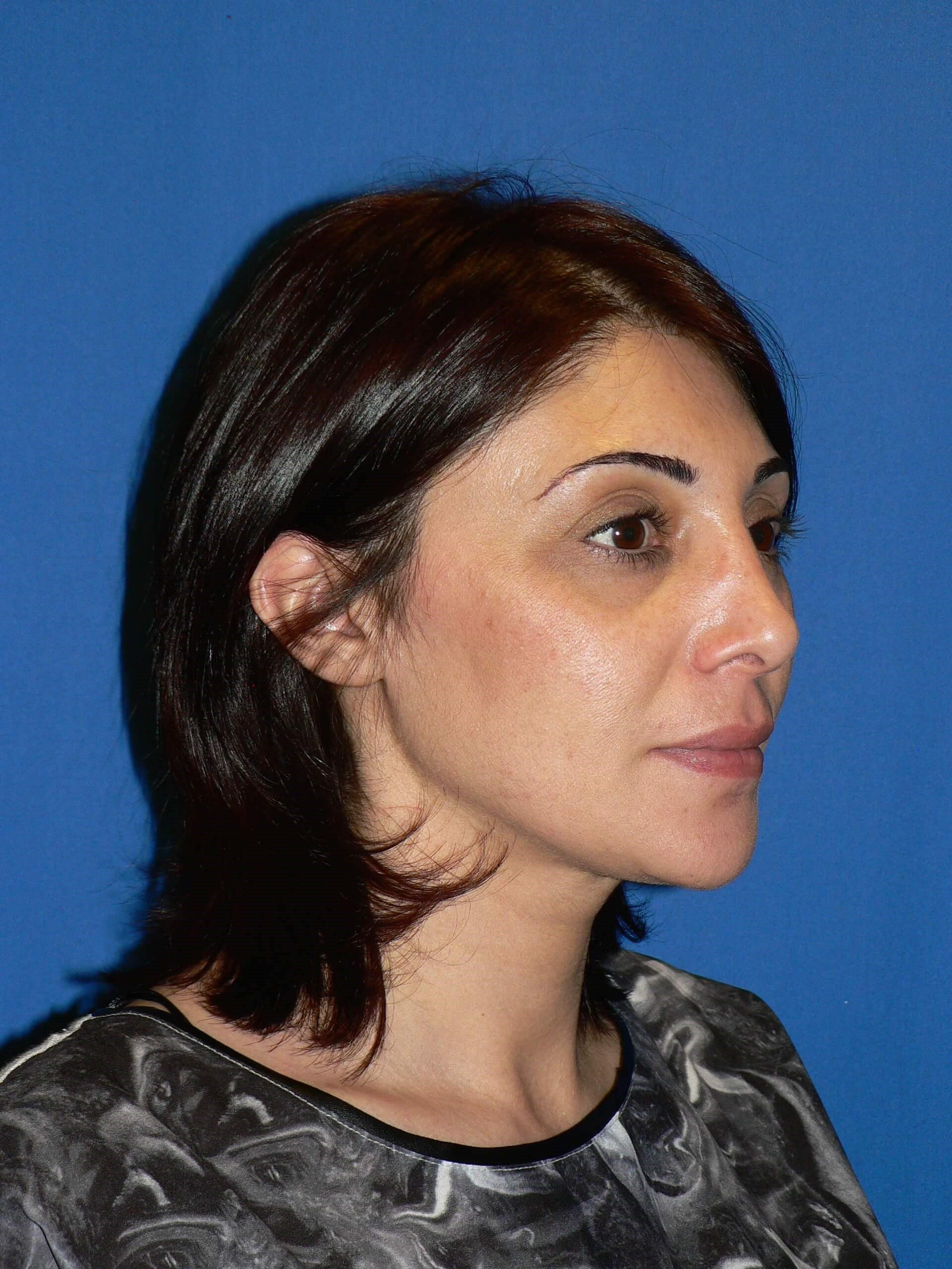 Rhinoplasty Denver, Colorado After