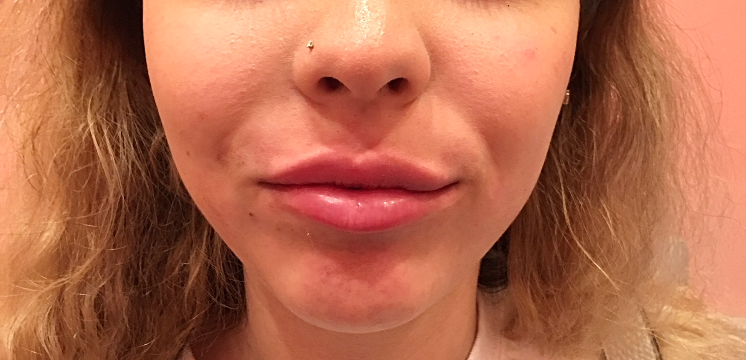 Lip Injections After