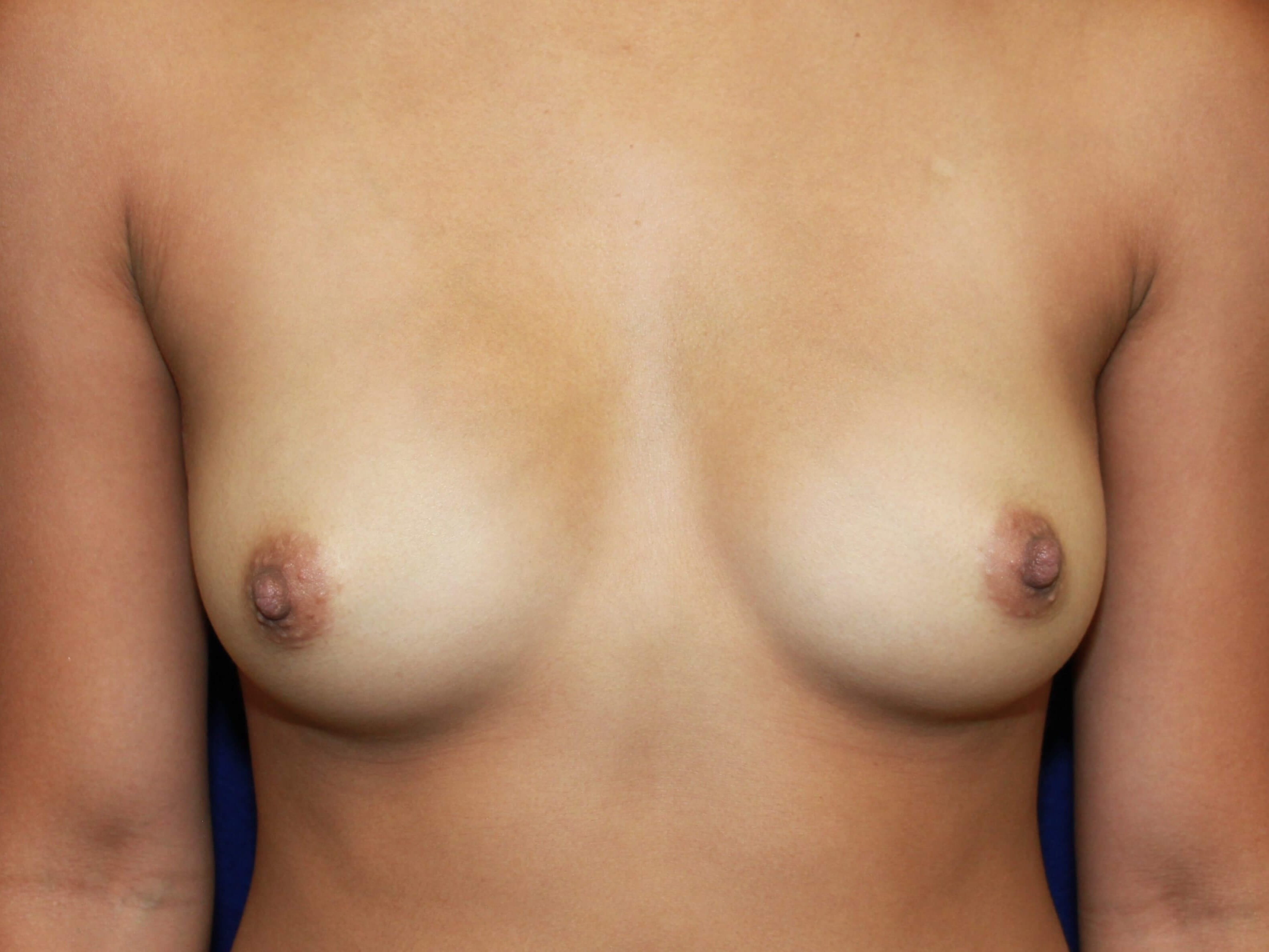TUBA 425cc HP Under Muscle Before Breast Implants
