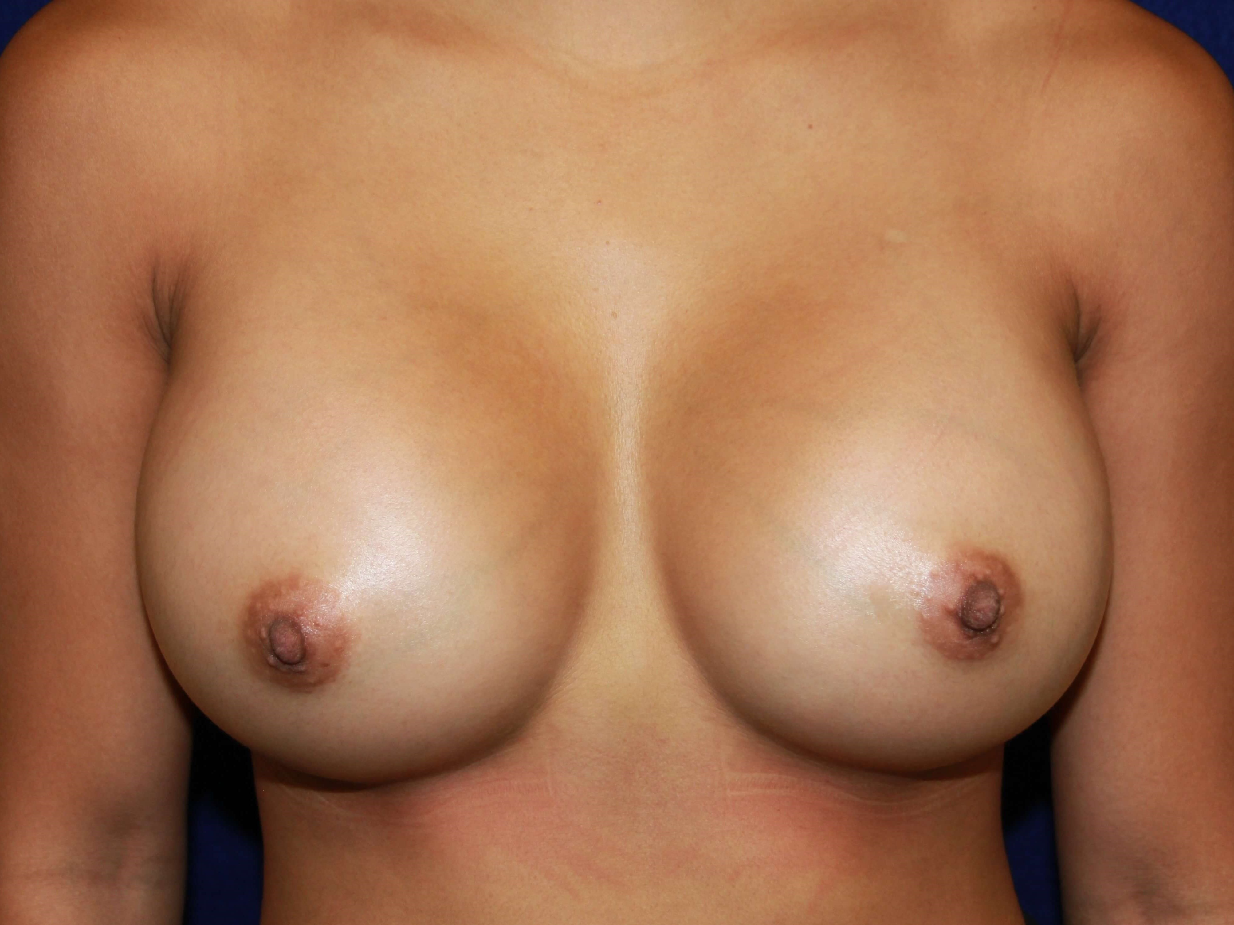 TUBA 425cc HP Under Muscle After Breast Implants