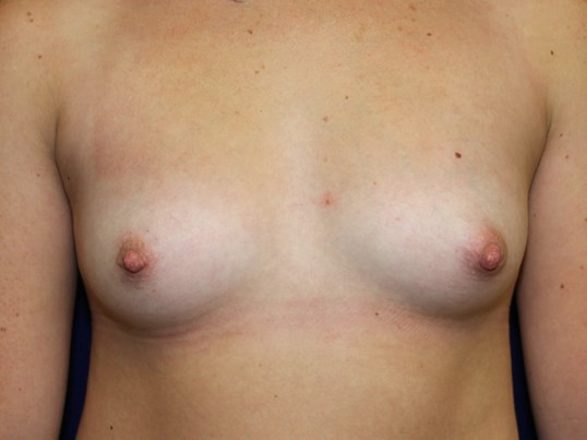 TUBA Implants Before and After Before Breast Implants