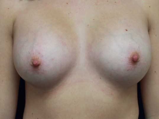 TUBA Implants Before and After After Breast Implants