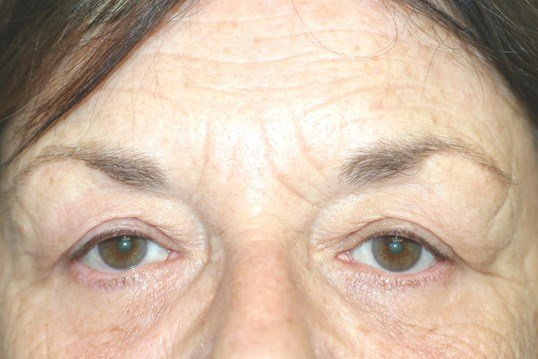 Upper Blepharoplasty Before