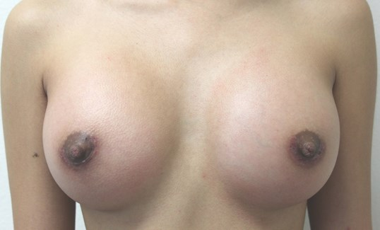 Breast Aug Before and After After Breast Implants