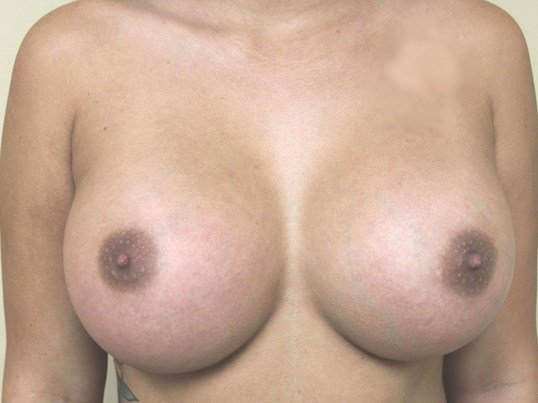 Silicone Gel 560cc After Breast Implants