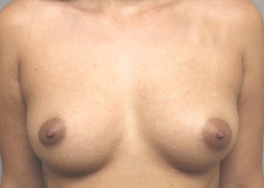 Silicone Gel 560cc Before Breast Implants
