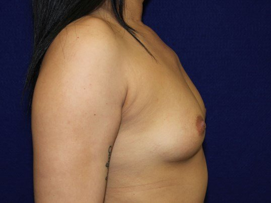 Silicone Gel SRX cc 700 Under Before Breast Implants