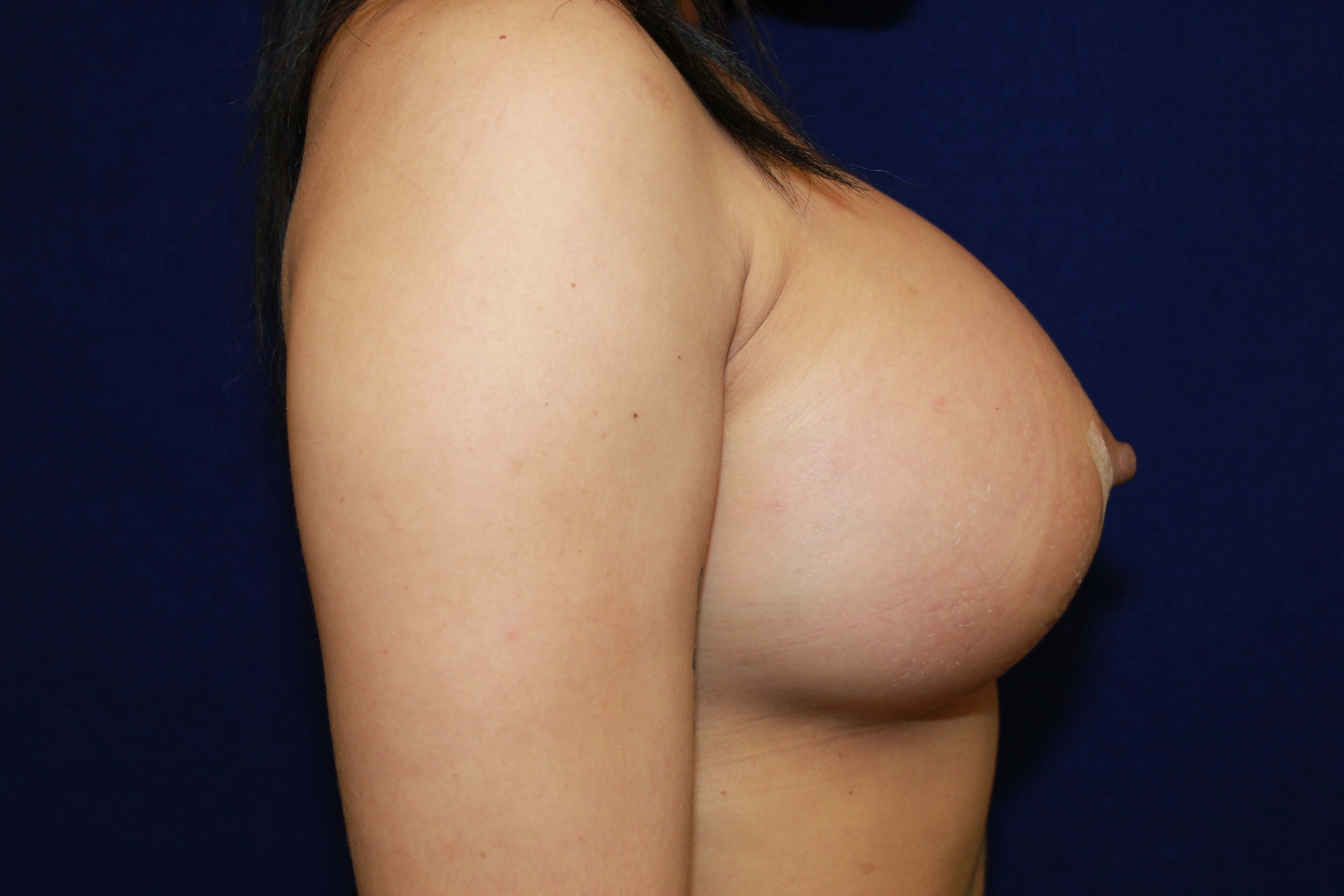 Silicone Gel SRX cc 700 Under After Breast Implants