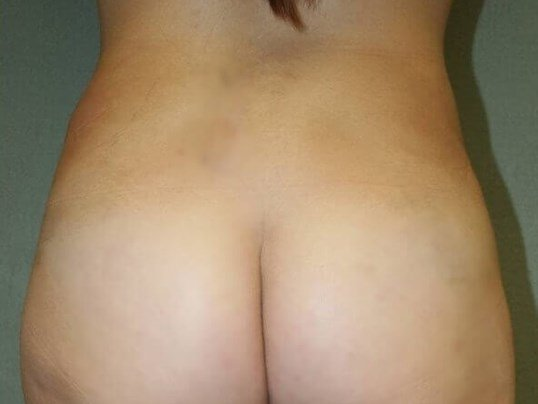 Liposuction Love Handles After