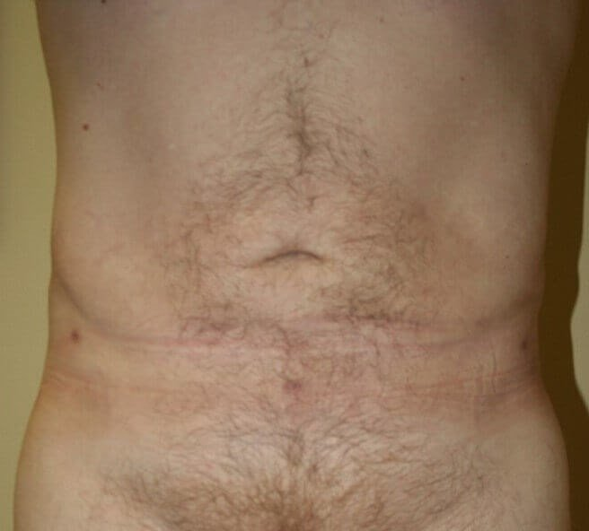 Abdominal Liposuction After